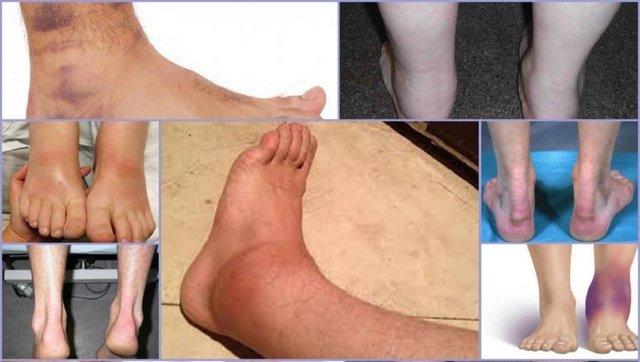 Признаки бурсита голеностопа: болевые ощущения и слабость мышц