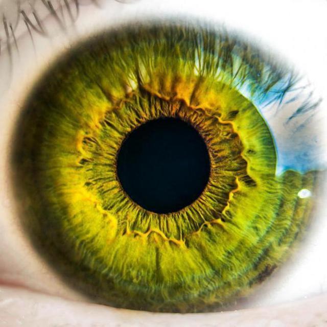 Гипертоническая ангиопатия сетчатки глаза: симптомы и лечение