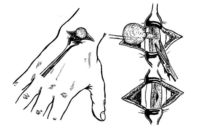Удаление гигромы: с помощью лазера и скальпеля