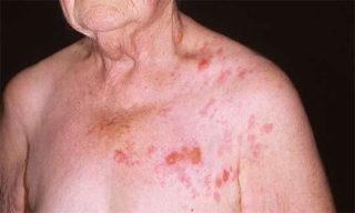 Опоясывающий лишай у пожилых людей: симптомы и лечение