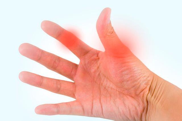 Как лечить бурсит пальцев рук: диета, медикаменты и народные методы