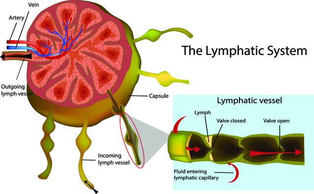 Применение эндолимфатической терапии