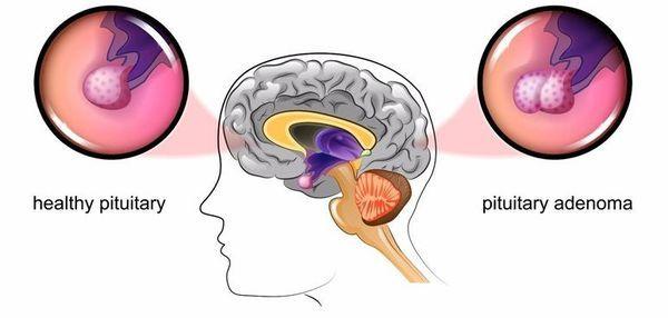 Болезнь Иценко-Кушинга: диагностика и процесс оздоровления