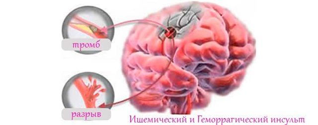 Как определить инсульт: симптомы, первая помощь, профилактика