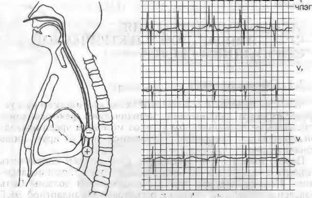 Электростимуляция мышц: показания и противопоказания процедуры, обзор устройств: Стимул-1, Миоволна, МИОРИТМ-040-М2