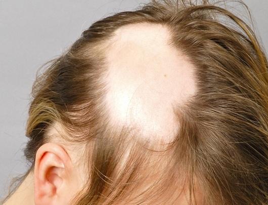 Сильное выпадение волос на голове у пожилых женщин - как и почему?
