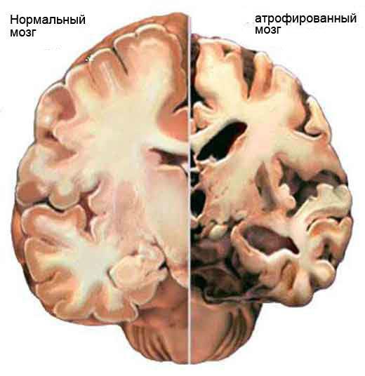Возрастные изменения в организме человека - 7 факторов