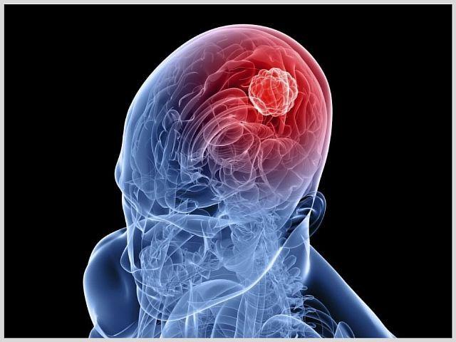 Чем опасна киста головного мозга в пожилом возрасте: головные боли и судороги