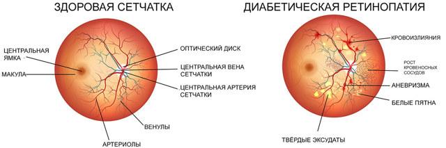 Диабетическая ретинопатия: симптомы и лечение