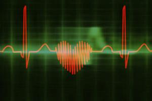 Что делать, если у пожилого человека низкий пульс
