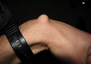 К какому врачу обращаться при гигроме на руке, ноге: точный ответ
