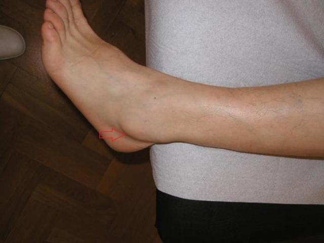 Основные симптомы гигромы стопы: болевые ощущения и постепенное увлечение размеров