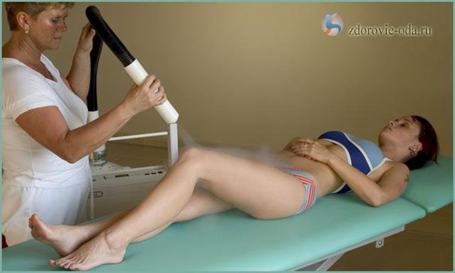 Криотерапия при остеохондрозе