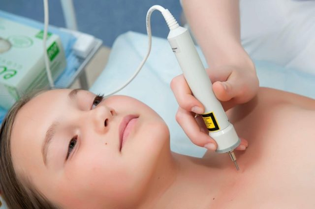 Рефлексотерапия: основные методы и противопоказания