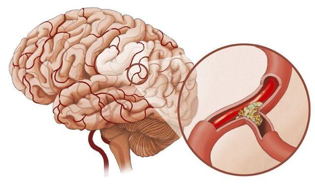 Атеросклероз головного мозга у пожилых: симптомы и лечение