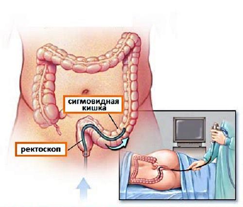 Недержание кала, первые симптомы и лечение