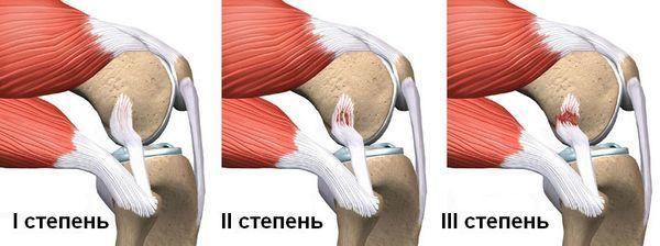 Причины развития тендита сухожилий коленного сустава: большие физические нагрузки и травмы