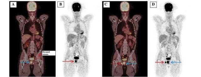 hifu терапия при онкологических заболеваниях - есть ли эффективность от метода?