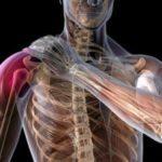 Как правильно лечить артроз плечевого сустава: операция, гимнастика и народные методы