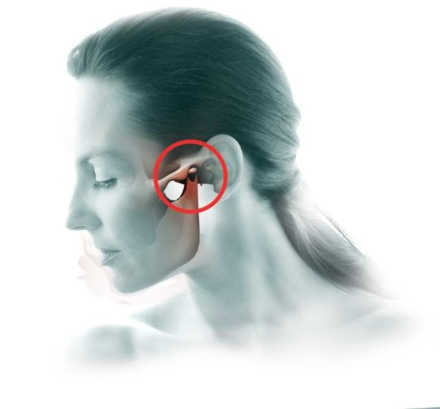 Причины развития височного тендинита: ушибы и не правильный прикус