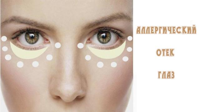 Аллергическая реакция на глазах: симптомы и диагностика