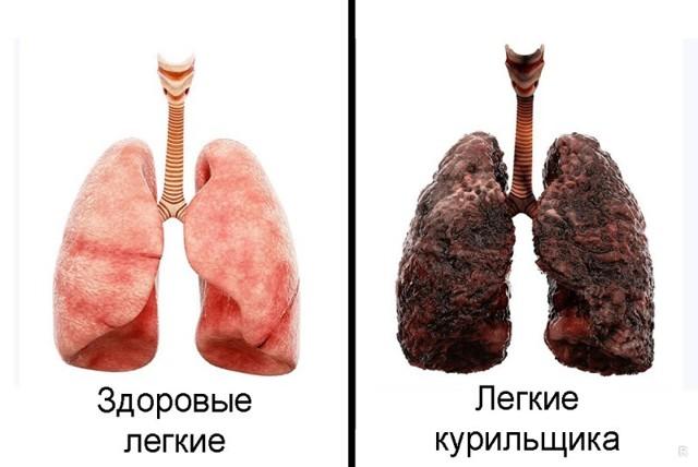 Как бросить курить в пожилом возрасте - популярные вопросы
