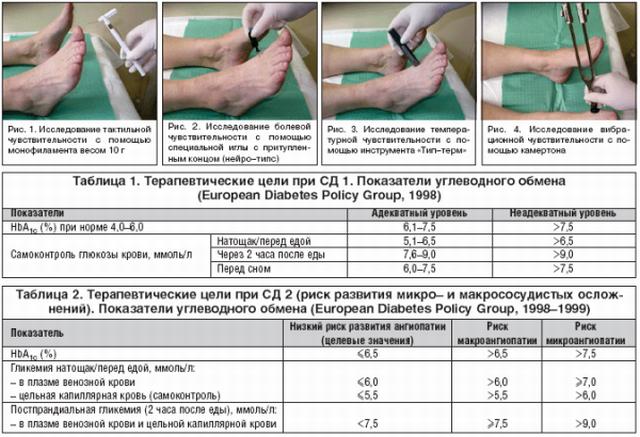 Причины полинейропатии нижних конечностей