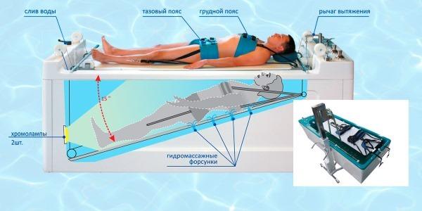 Вертикальное подводное вытяжение позвоночника