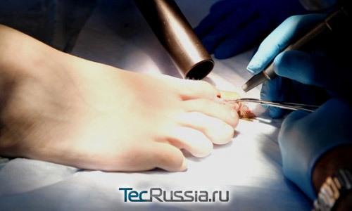 Лазерное удаление вросшего ногтя: причины появления недуга и как проходит процедура