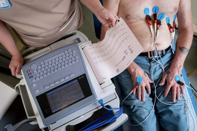 Лечение мерцательной аритмии у пожилых