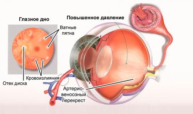 Внутриглазное давление у взрослых: симптомы и лечение