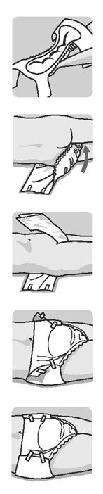 Как подкладывать судно под лежачего больного: алгоритм действий
