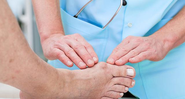 Подагра у пожилых людей: симптомы и лечение народными средствами