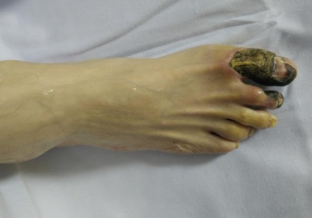Ампутация ноги при гангрене в пожилом возрасте: как избежать печального исхода