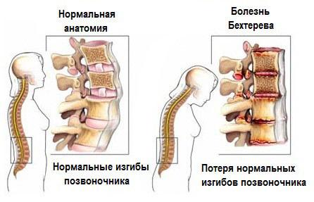 Болезнь Бехтерева: причины возникновения, симптомы и лечение