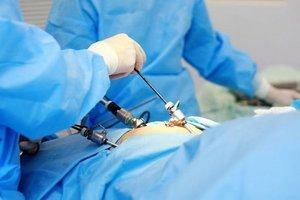 Процесс реабилитации после удаления желченого пузыря: питание и лечебные процедуры
