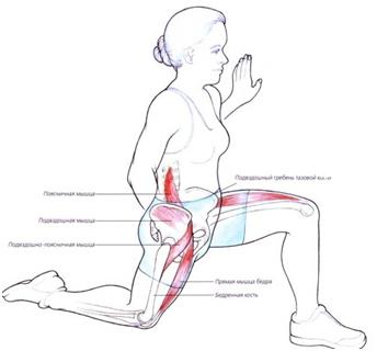 Как лечить тендинит бедра: ЛФК, медикаменты и физиотерапия