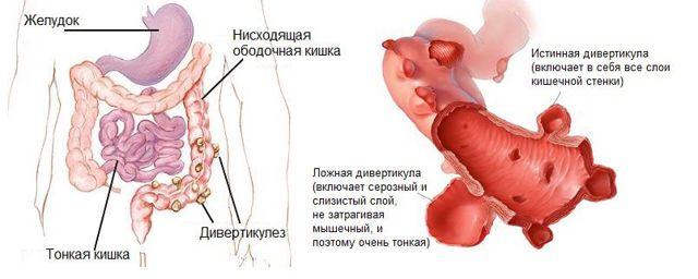 Признаки дивертикулита кишечника у взрослых: болевые ощущения и запоры