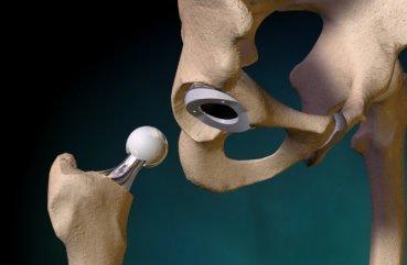 Как быстро получить квоту на замену коленного сустава: список требований для государственных греференций