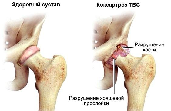 Гимнастика при артрозе тазобедренных суставов Евдокименко