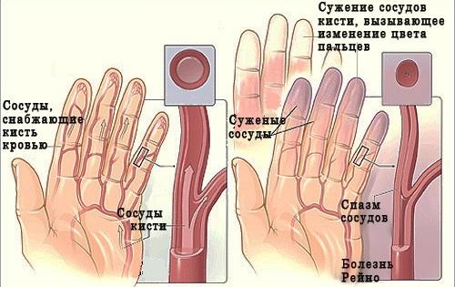 Склеродермия: основные причины заболевания