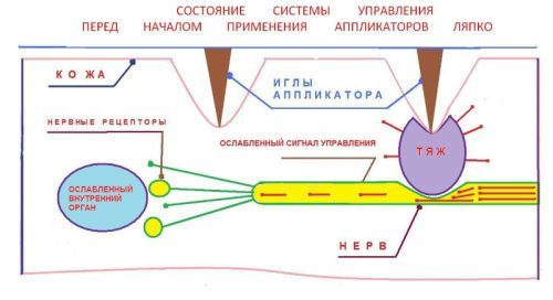 Массажер Ляпко: виды и инструкция по применению