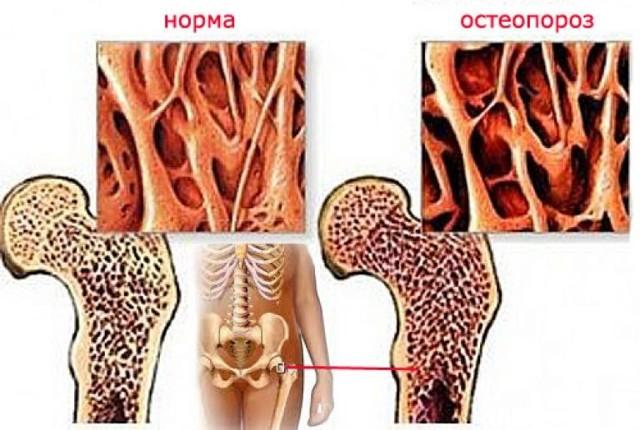 Перелом в пожилом возрасте - что такое остеопороз (симптомы)