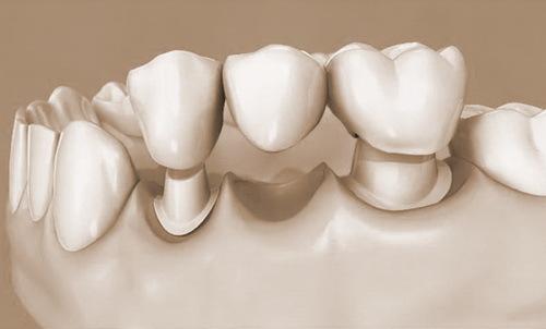 Как получить налоговый вычет за лечение и протезирование зубов: необходимые документы, примеры расчета и сроки возврата