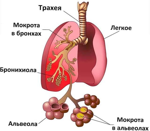 Пневмония у лежачих пожилых людей - диагностика и прогноз