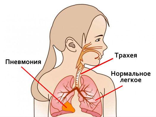Реабилитация после пневмонии в домашних условиях: физиотерапия и диета