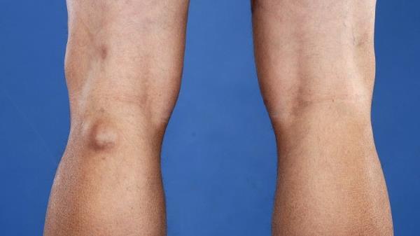 Синовиальная киста коленного сустава: причины развития и диагностика заболевания