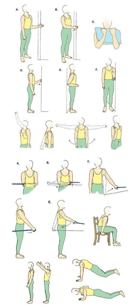 Процесс восстановления после вывиха локтя: ЛФК, физиотерапия, витамины и массаж