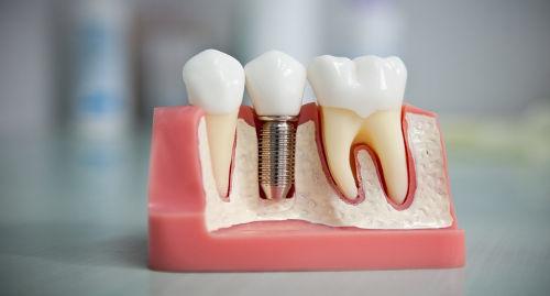 Виды зубных протезов: классификация