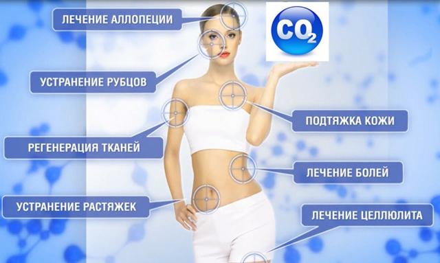 Как проходит процедура карбокситерапии - показания и противопоказания